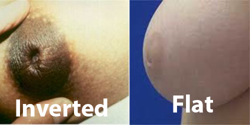 I Have Flat Nipples 66